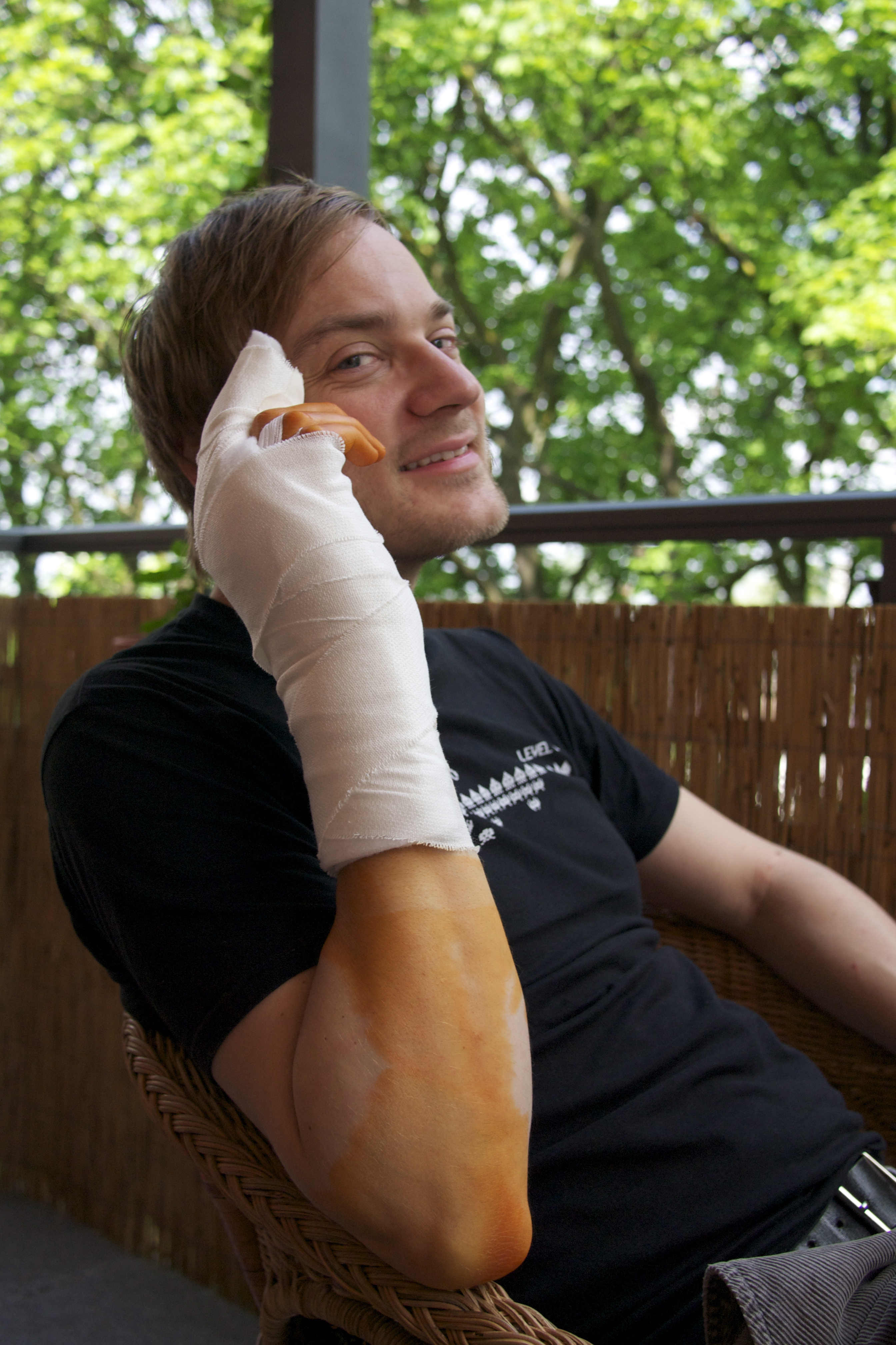 André's bandaged hand